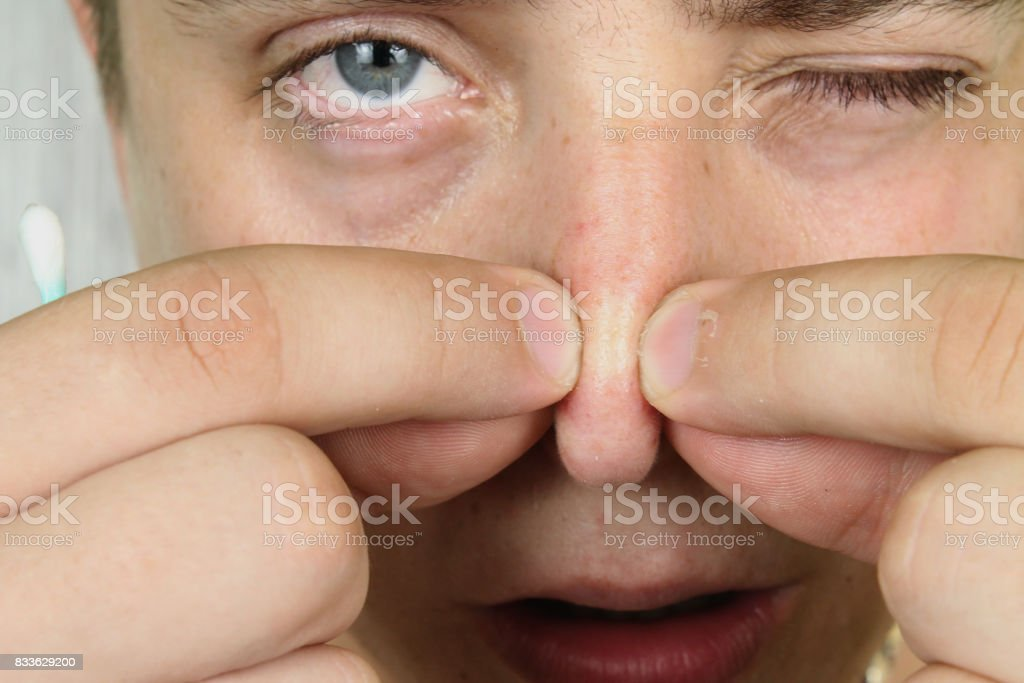Closeup portrait young man looking at the camera, squeezing acne or blackheads on the nose. Close-up as background for the hygiene of the face and nose. Dermatology and skin problems. Oily skin face stock photo