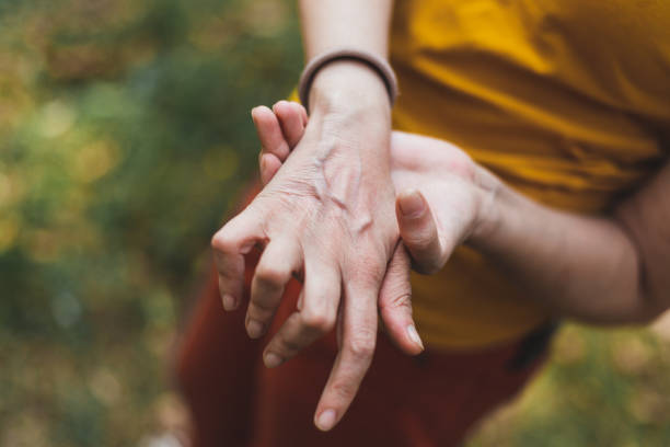 Close-up shot of hand with arthritis outside stock photo