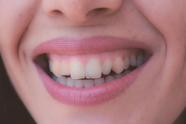 Closeup shot of human female face. Woman with pink lips and healthy dentes. Girl is smiling stock photo