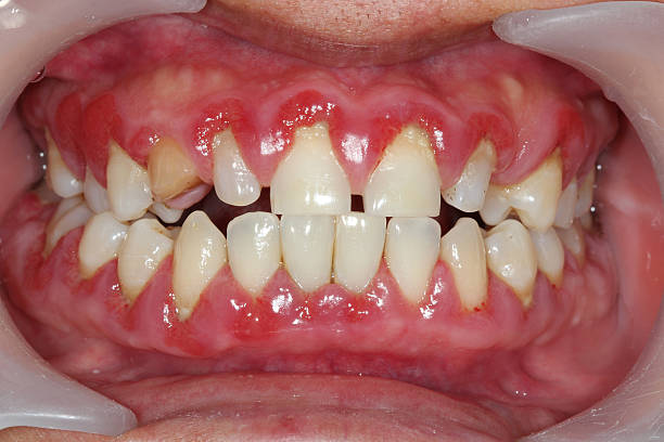 A close-up shot of someone suffering from gingivitis stock photo