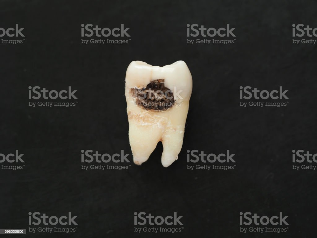 Closeup single bad tooth with caries big hole on black background. Unhealthy teeth. stock photo