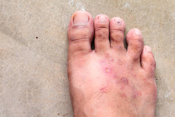 closeup skin athlete's foot psoriasis fungus stock photo