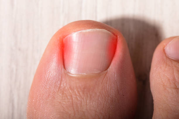 Close-up Sore Toe Nail stock photo