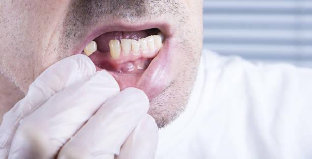 closeup zähne, gesundheitswesen zahnklinik mit fehlenden zahn - zahnlücke stock-fotos und bilder