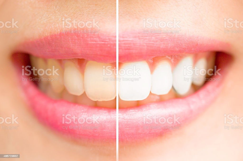Close-up teeth female between before and after brush the teeth. stock photo