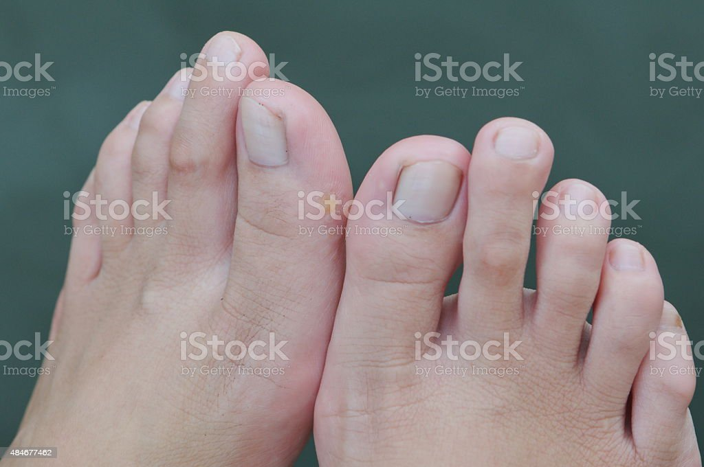 closeup toe stock photo