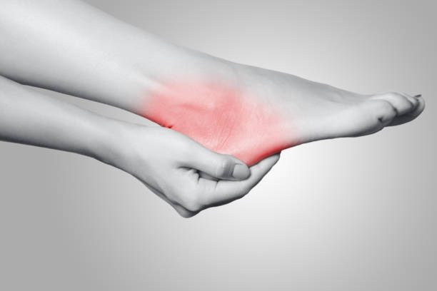 Closeup view of a young woman with pain on leg on gray background. Closeup view of a young woman with pain on leg on gray background. Black and white photo with red dot. sole of foot stock pictures, royalty-free photos & images