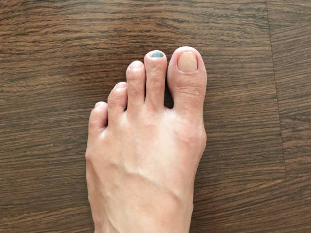 Close-up view of bruise on toenail or injured black toenail on wooden floor, healthcare and medical concept stock photo