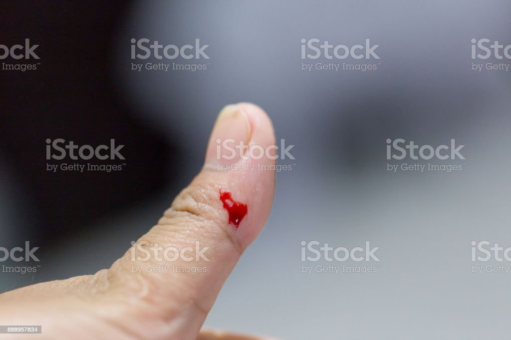 closeup view of finger on left thumb human hand is cut hurt and