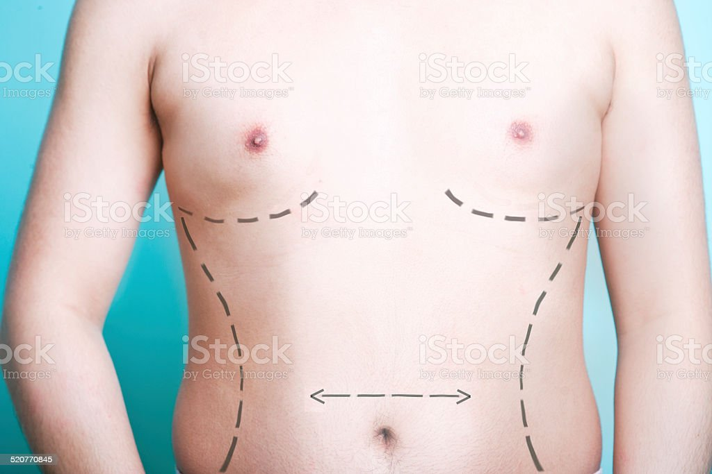 Closeup View Of Mans Body With Plastic Surgery Line Markings