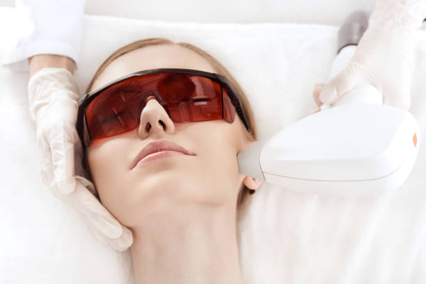Close-up view of young woman in uv protective glasses receiving laser skin care on face stock photo