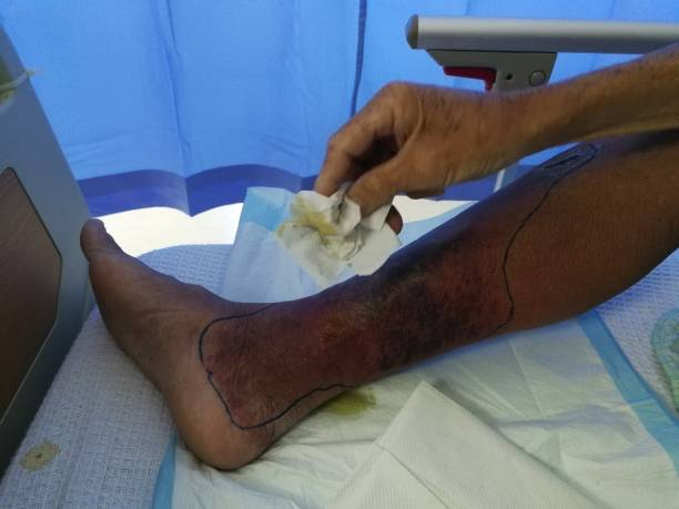 poze operatii varice