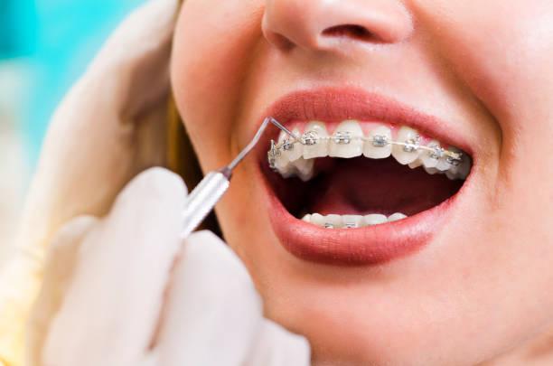 closeup junge frau überprüfung ihrer zahnspange lächeln - kieferorthopäde stock-fotos und bilder
