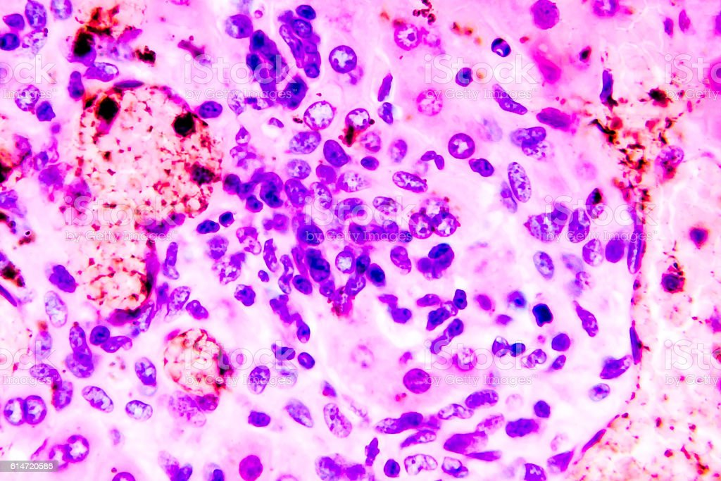Coccidiosis, coccidia in liver stock photo