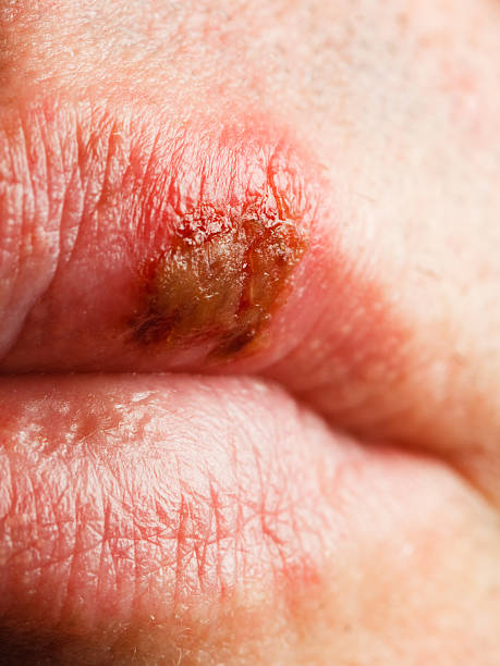 herpes simplex virus drug resistance Therapies becoming resistant the drug resistant virus is considered to be the fittest in the presence of the drug (ie herpes simplex virus).