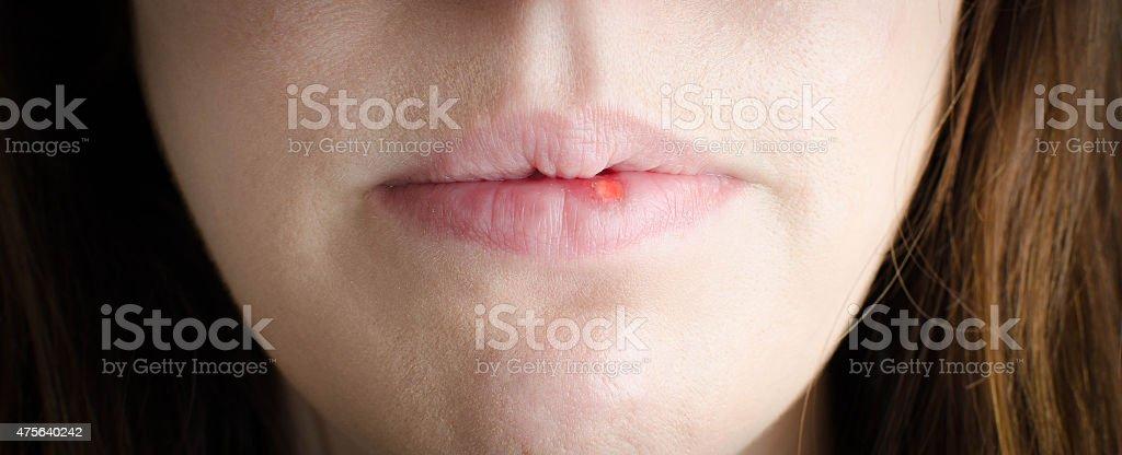 Cold sore woman stock photo