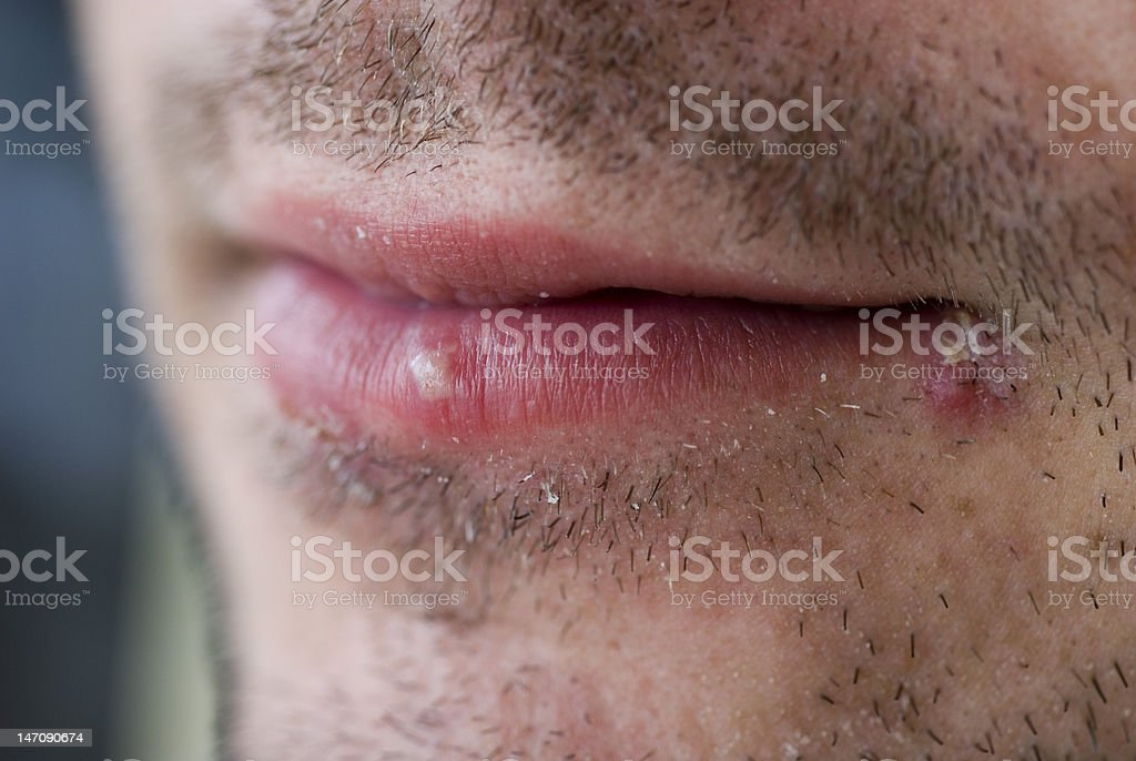 Cold sores (herpes labialis) stock photo