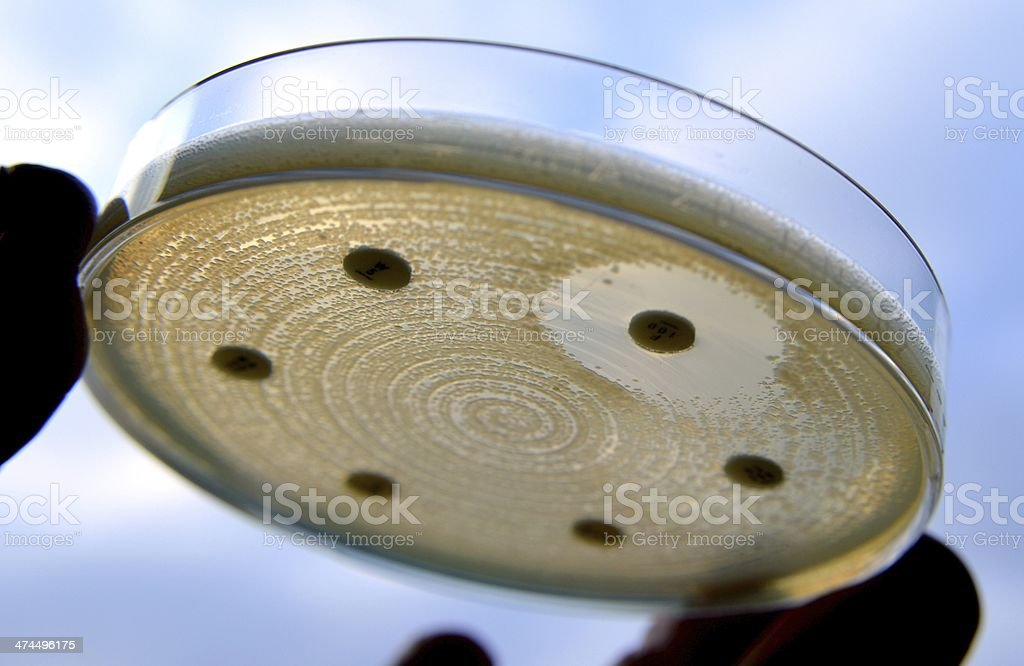 ESBL E. coli royalty-free stock photo