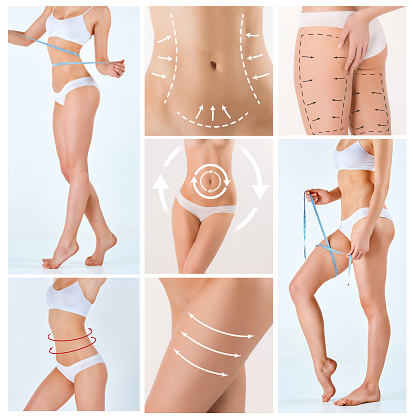 istock Collage of female body with the drawing arrows 500058156