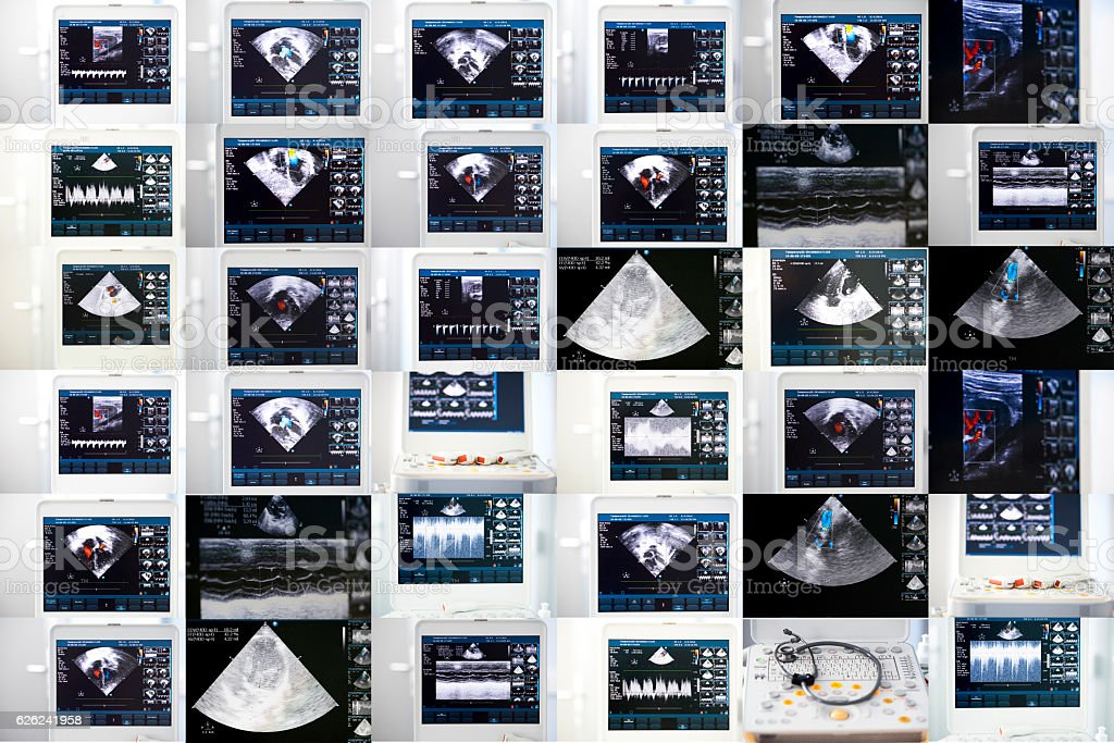 collage of images of ultrasound machine stock photo