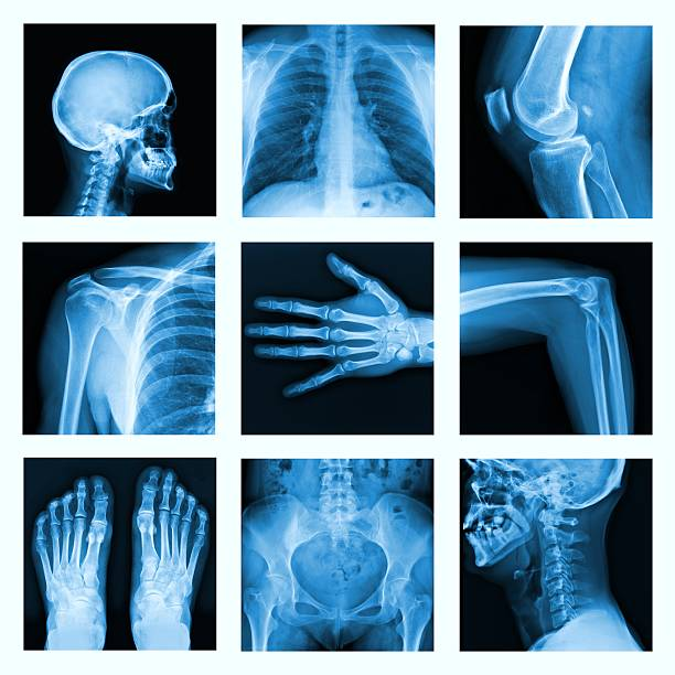 Collage of many X-rays in very good quality. stock photo