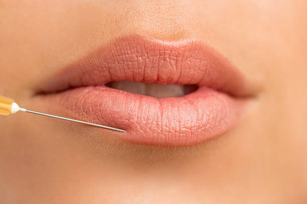 Collagen injection for lip augmentation stock photo