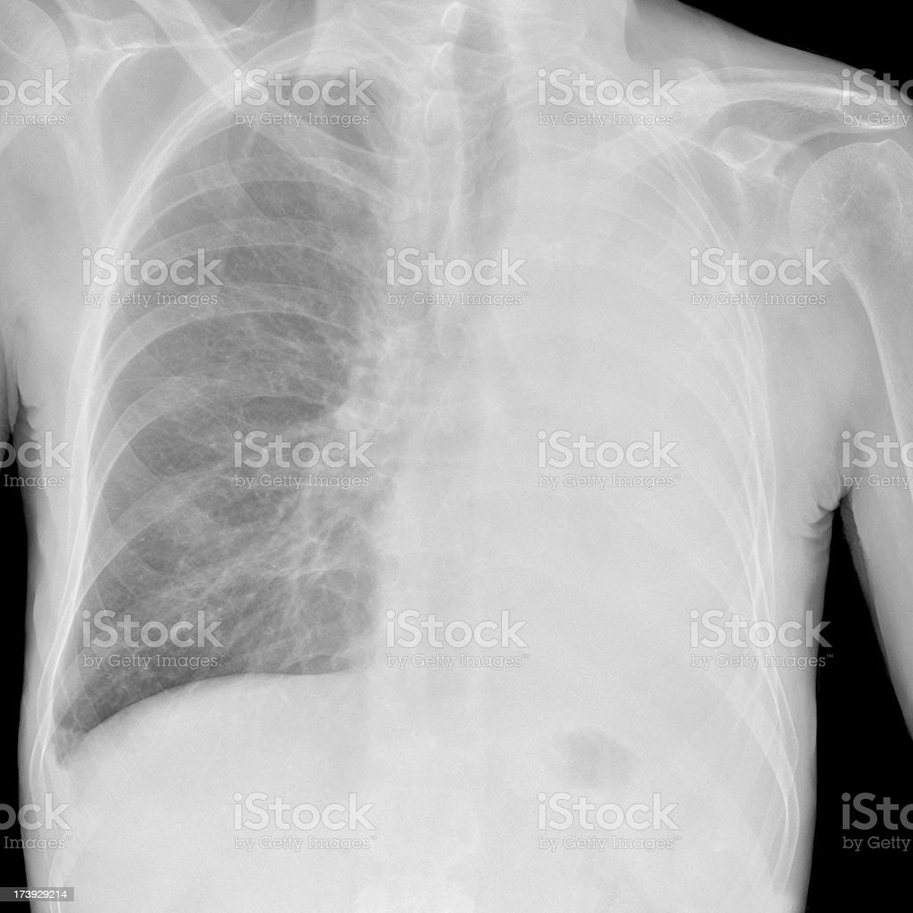 collapsed lung digital chest x-ray eg in asthma and cancer royalty-free stock photo
