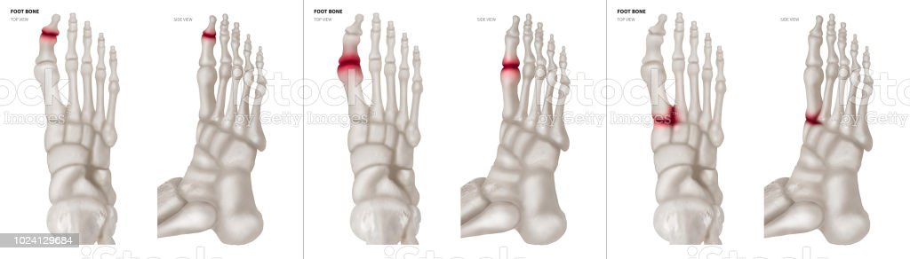 Collection Arthritis In Big Toe Joint Foot Bone Red Highlights On