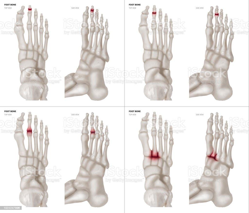 Fuß Anatomie Knochen