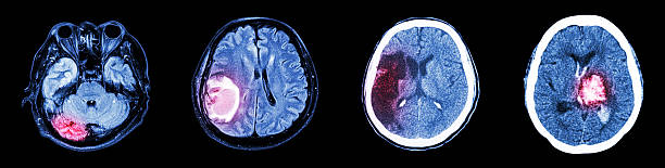 Collection CT scan of brain and multiple disease stock photo