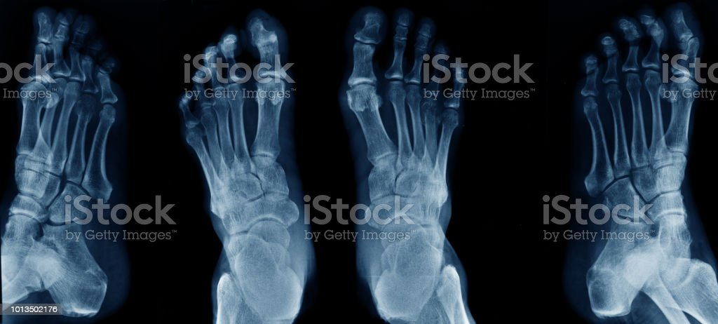 Collection Foot Xray Stock Photo More Pictures Of Anatomy Istock