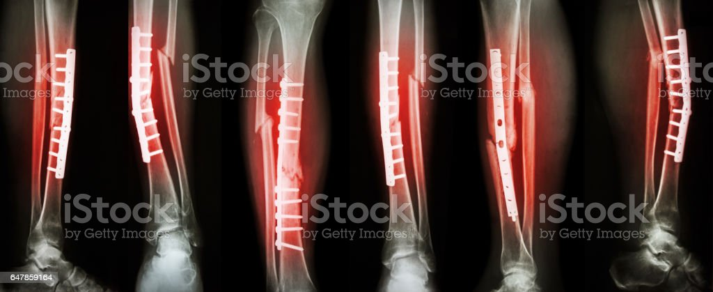 Collection image of leg fracture and surgical treatment stock photo