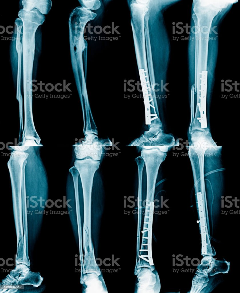 collection leg xray, fracture and leg fixed stock photo