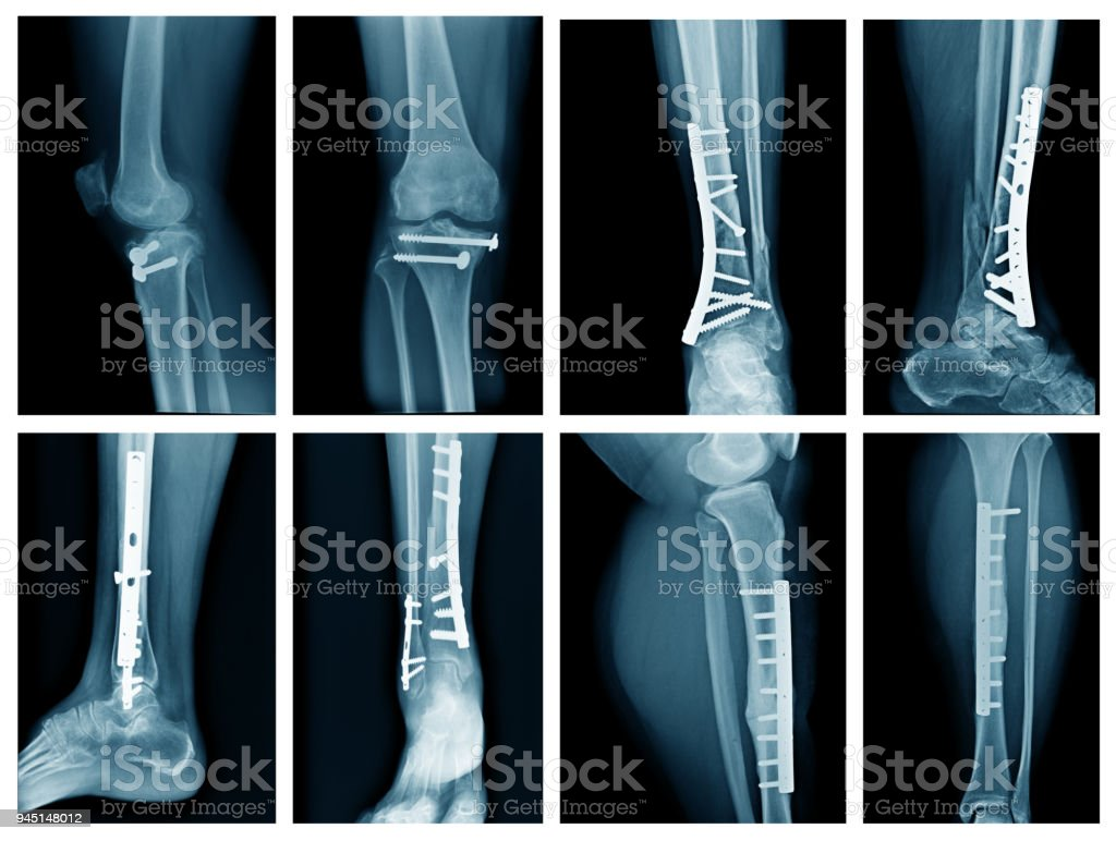 collection leg x-ray stock photo