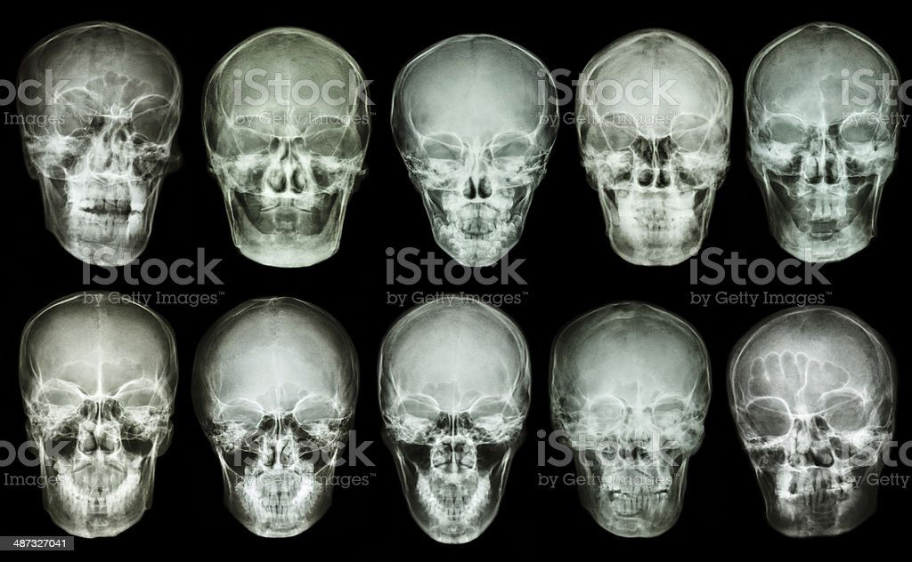 Collection of asian skull (anterior view) (Thai people) stock photo