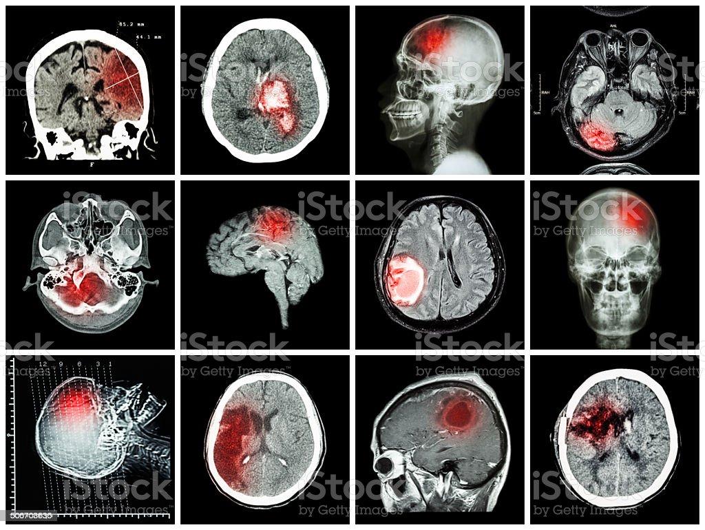 Collection de la maladie du cerveau - Photo