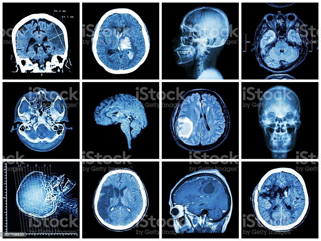 Collection of brain disease stock photo