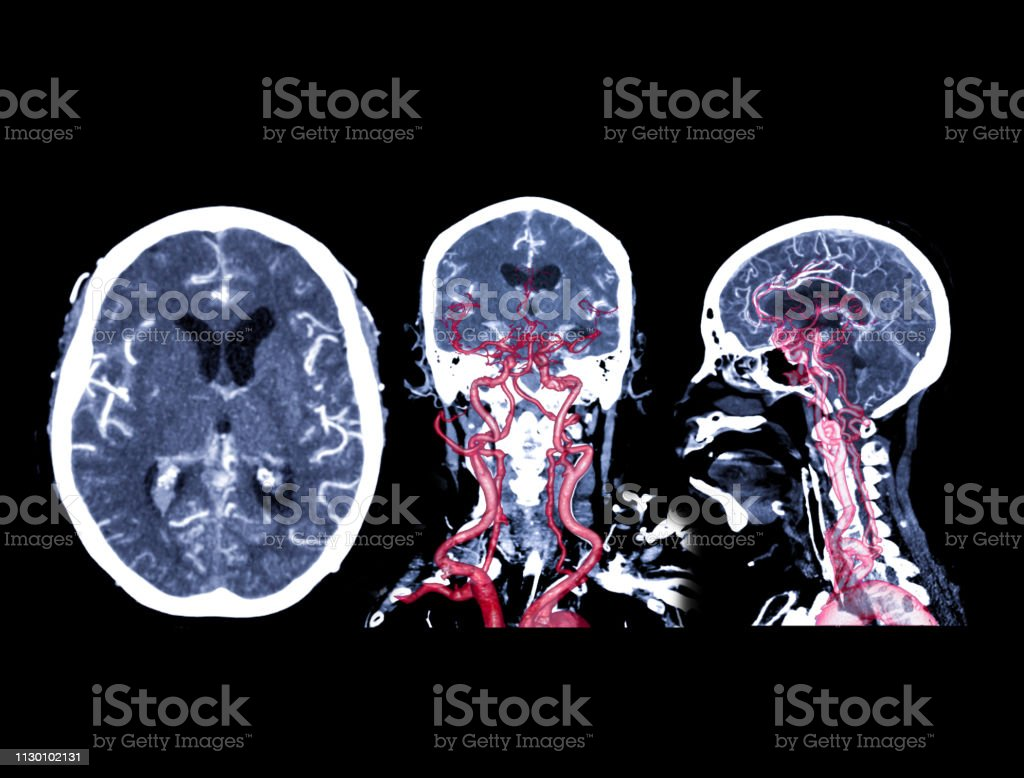 Collection of CT angiography of the brain stock photo
