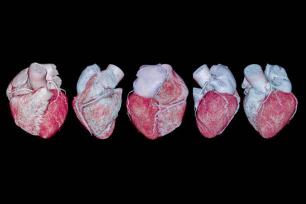 Sammlung von CTA koronaren Arterie 3D-Rendering Bild zeigen Koronararterie. – Foto