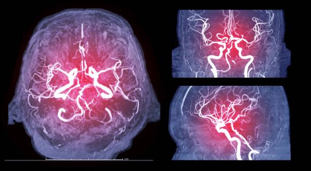Sammlung von Magnetresonanz-Bild (MRI) des Schiffes im Gehirn axiale, koronale und sagittaler Ansicht oder MRA Gehirn. – Foto