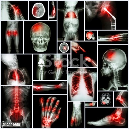 istock Collection of X-ray multiple part of human 510224659