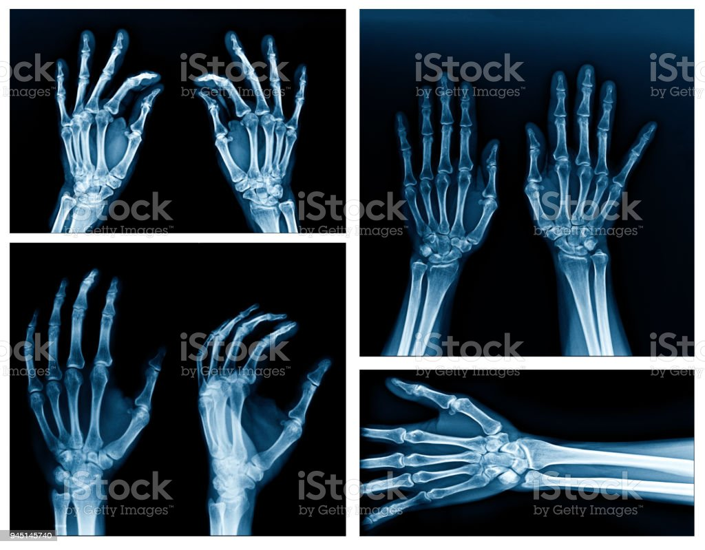 collection x-ray hand stock photo