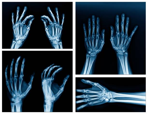 kollektion röntgen hand - skelett hand stock-fotos und bilder