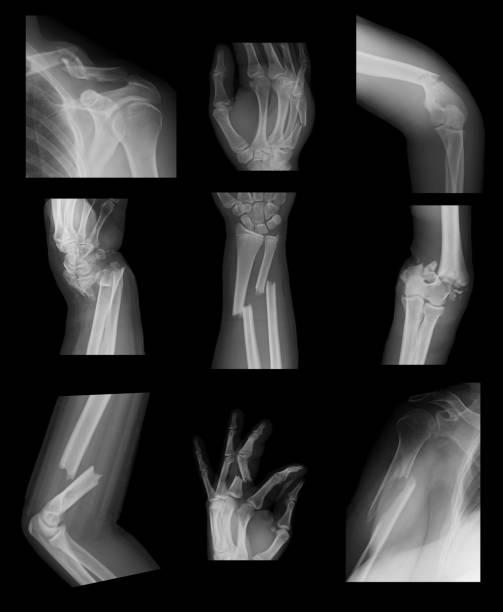 röntgenbilden samling av övre extremiteten frakturer - brott bildbanksfoton och bilder