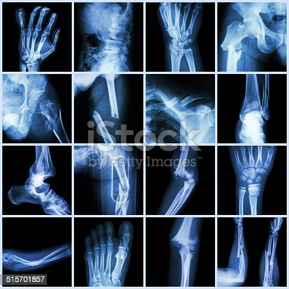 istock Collection X-ray multiple bone fracture 515701857