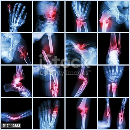 istock Collection X-ray multiple bone fracture 517445883