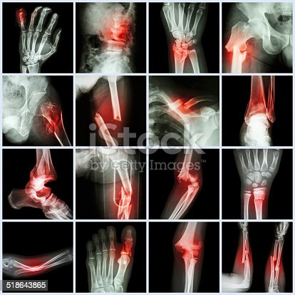 istock Collection X-ray multiple bone fracture 518643865
