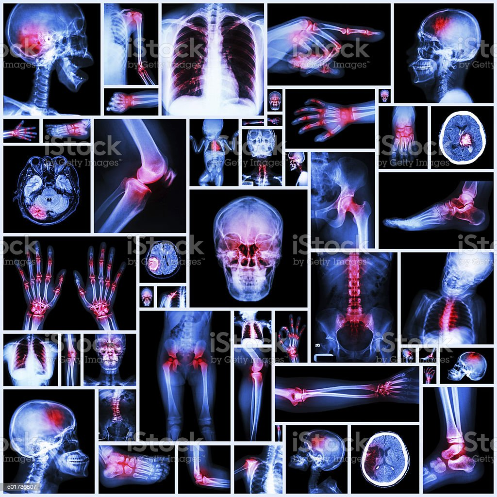 Collection X-ray multiple organ and arthritis at multiple joint stock photo