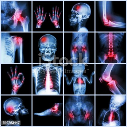 istock Collection X-ray multiple part of human and Arthritis,multiple disease 510763447