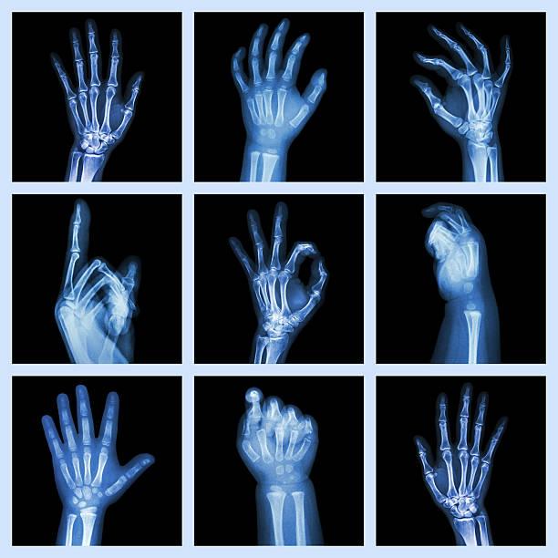 kollektion x-ray von händen - skelett hand stock-fotos und bilder